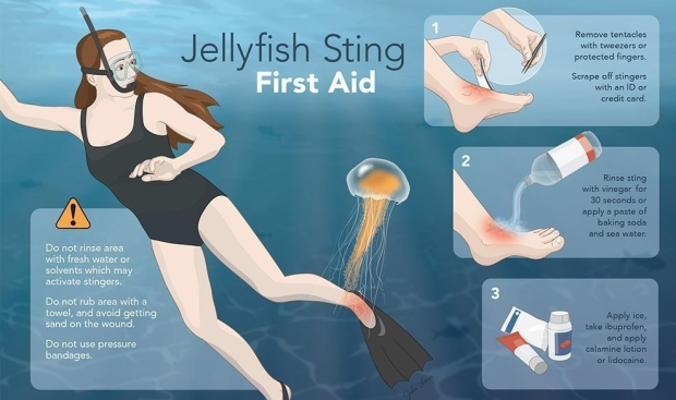 jellyfish-sting-first-aid